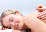 smiling woman receiving acupuncture services - provided by BlueWhite Health